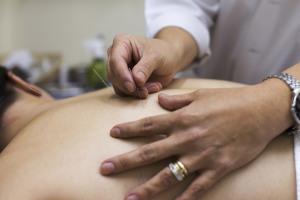 acupunturamodificada